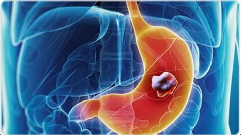 Symptoms and Treatment of Stomach Cancer   YouTube
