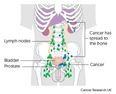 Symptoms of advanced prostate cancer | Cancer Research UK