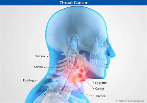 Symptoms Of Neck Throat Cancer   Operation18   Truckers ...