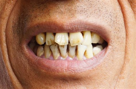 Symptoms of oral cancer you should never ignore ...