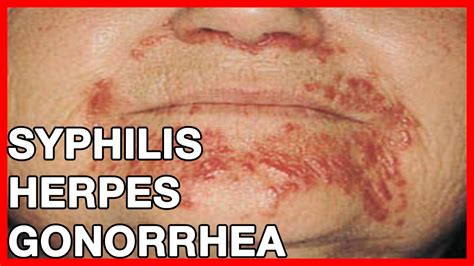 Symptoms of Syphilis, Herpes, Gonorrhea // What are STDs ...