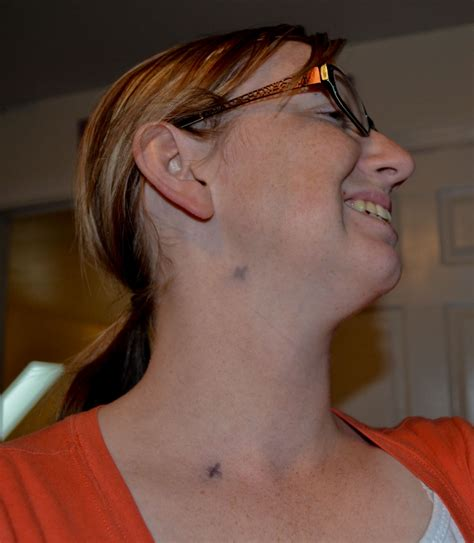 T Cancer: Lymph node Mapping