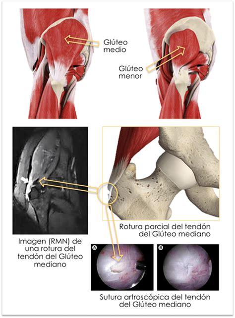 Tendinitis gluteos. Rotura de los tendones gluteos medio y ...
