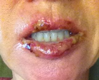 The Aesthetic Apothecary: Skin Cancer & Your Lips