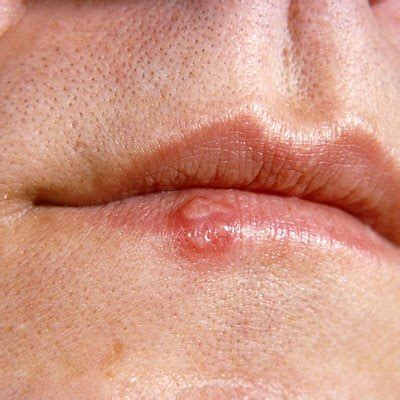 The Difference Between Cold Sores and Canker Sores