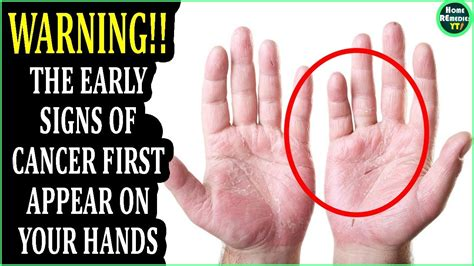 The Early Signs of Cancer First Appear On Your Hands ...