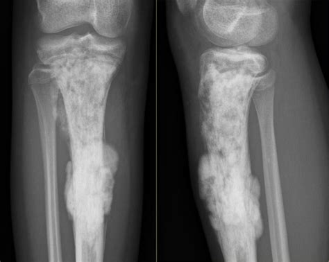 The Radiology Assistant : Bone   Sclerotic tumors and ...