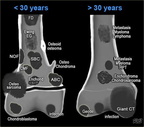 The Radiology Assistant : Bone tumor   Differential ...