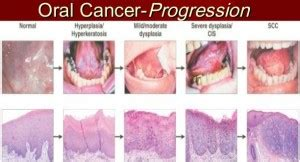 The Warning Signs & Symptoms of Mouth Cancer | Emergency ...