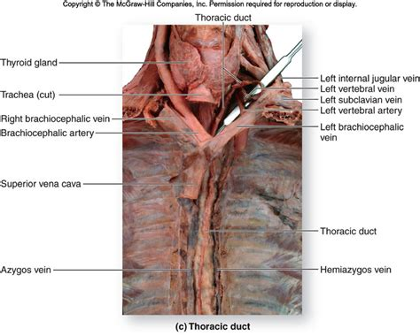 Thoracic Duct; Cisterna Chyli