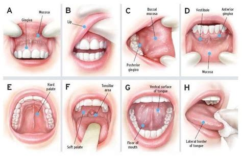 Throat Cancer Symptoms, Risk Factors, Stages and Treatment ...