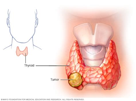 Thyroid cancer   Symptoms and causes   Mayo Clinic