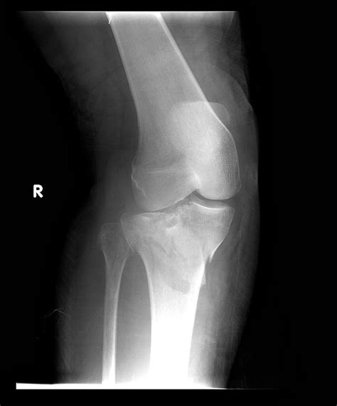 Tibial Plateau Fracture or Broken Top of the Shin Bone