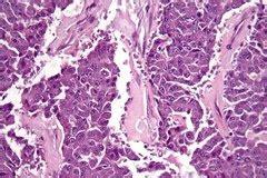 ¿Tiene cura el cáncer de páncreas? Síntomas y esperanza de ...