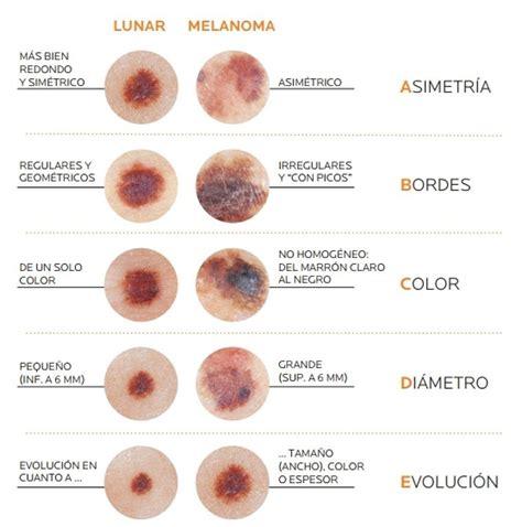 ¿Tienes cáncer de piel? Aprende a detectar los síntomas ...