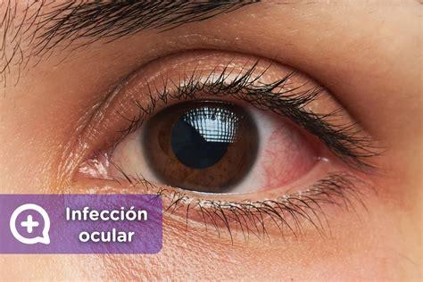 ¿Tienes infección ocular? Esto es lo que debes hacer   mediQuo