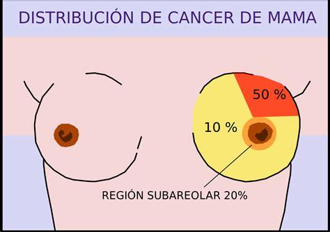 Tipos anatomopatológicos de cáncer de mama   Wikipedia, la ...