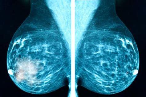 Tipos de cáncer de mama: no invasores, carcinoma ...