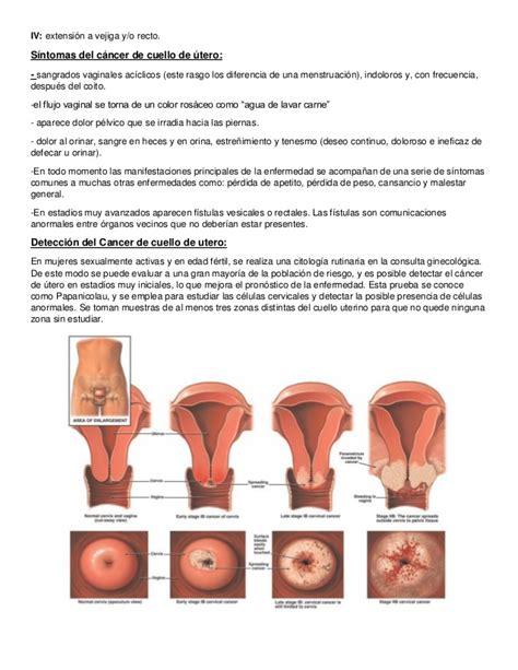 Tipos de cancer en la mujer