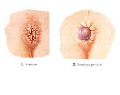 Tipos de hemorroides: internas, externas y su ...