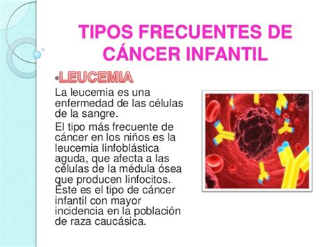 Tipos frecuentes de cáncer infantil