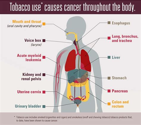 Tobacco and Cancer   CDC