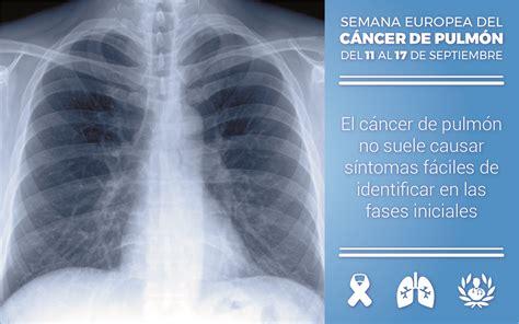 Todo lo que debes saber sobre el cáncer de pulmón | Blog