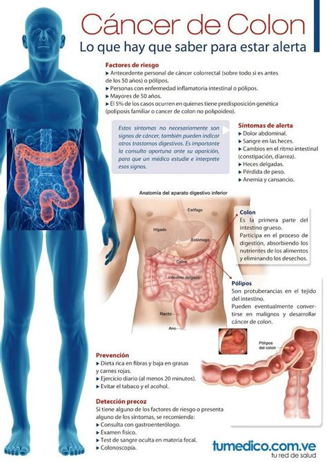 Todo lo que hay que saber sobre el cáncer de colon   MUJER ...