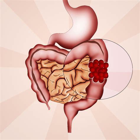 Todo sobre el cáncer de colon y recto