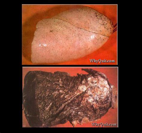 Todo sobre el cancer de pulmon [Imagenes,Toda la info ...