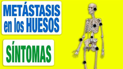 Todos los Síntomas de las Metástasis en los Huesos   YouTube