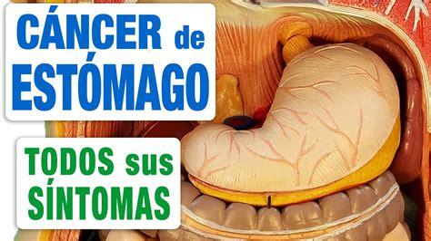 Todos los Síntomas del Cáncer de Estómago   YouTube