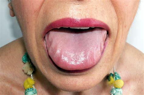 tongue amyloidosis