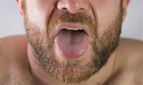 Tongue cancer early signs: A sore throat that won t go ...