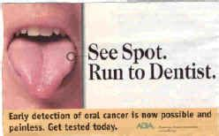 Tongue Cancer: Everything you need to know – St. James ...