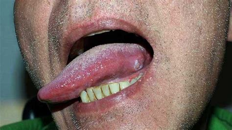 Tongue cancer: Symptoms, pictures, and outlook   Take the ...