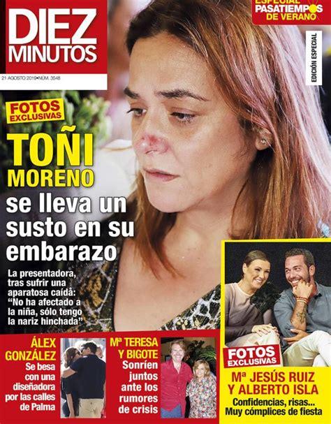 Toñi Moreno se lleva un susto en su embarazo   El Comercio