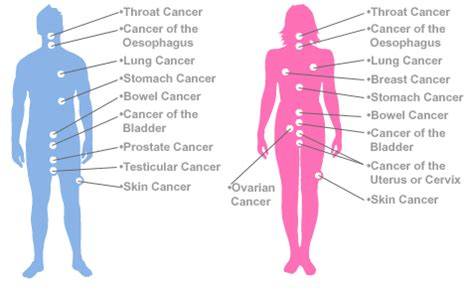 Top 10 Most Common Types of Cancer