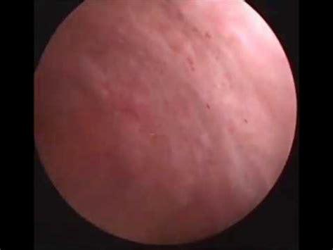 Transurethral Resection of Bladder Tumor  TUR BT  as ...
