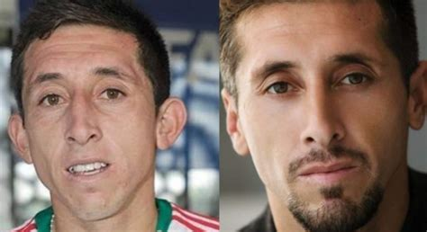 Tras cirugía estética, Héctor Herrera posa para una ...