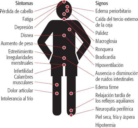 Trastornos tiroideos: hipotiroidismo y crisis por mixedema ...
