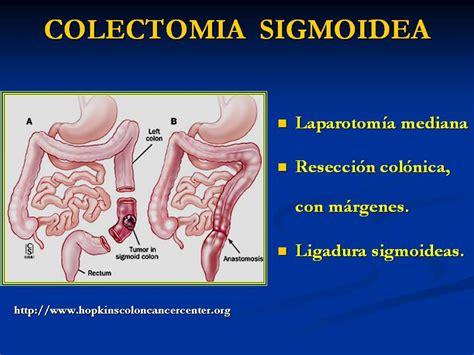 TRATAMIENTO CANCER DE COLON | Cancercolon s Blog