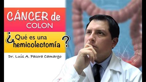 TRATAMIENTO DEL CÁNCER DE COLON. la HEMICOLECTOMÍA ...