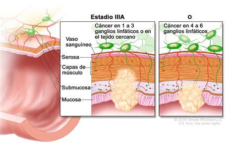 Tratamiento del cáncer de colon  PDQ –Versión para ...
