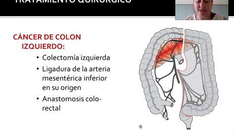 Tratamiento del cancer de colon   YouTube