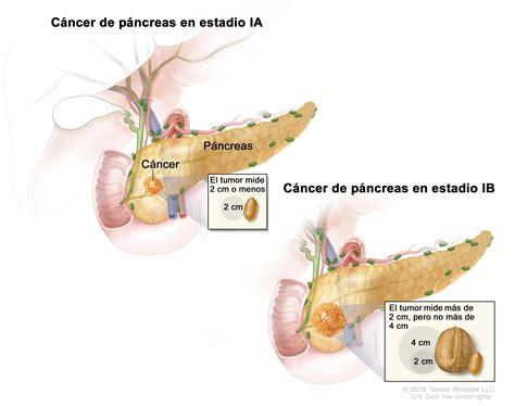Tratamiento del cáncer de páncreas en adultos  PDQ ...