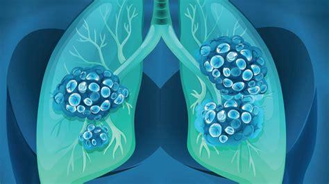 Tratamiento del cáncer de pulmón: Alternativo,quirúrgico ...