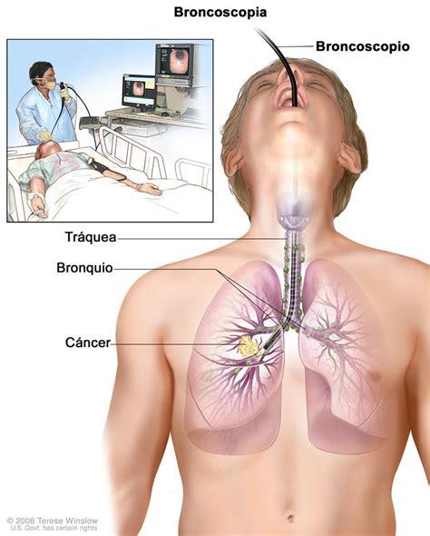 Tratamiento del cáncer de pulmón de células pequeñas  PDQ ...