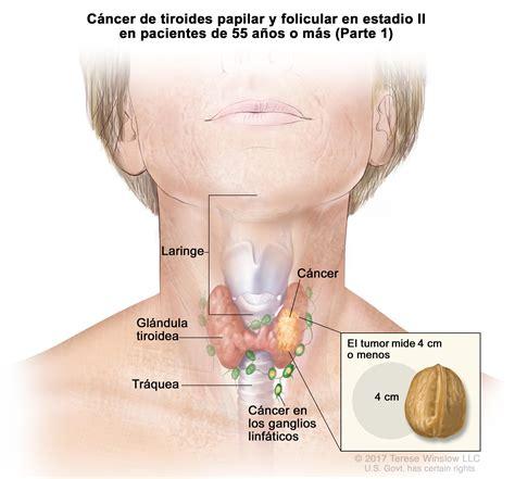 Tratamiento del cáncer de tiroides en adultos  PDQ ...