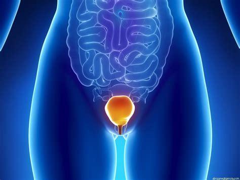 Tratamiento del cáncer de vejiga invasivo  cistectomía ...
